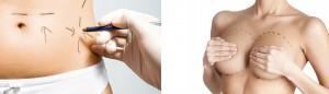 chirurgia plastica addome