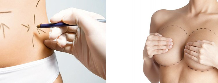 Chirurgia Plastica del corpo – Addominoplastica
