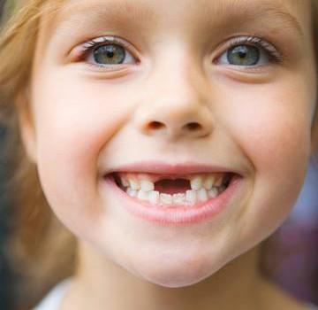 Denti da latte: le regole