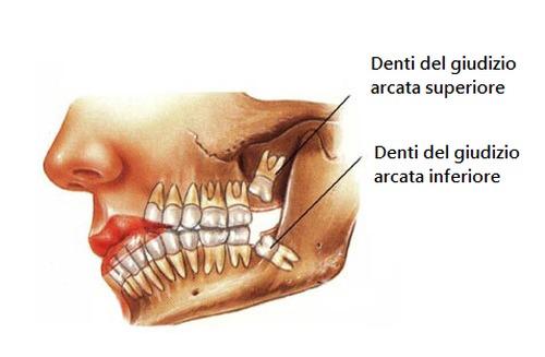 denti-del-giudizio