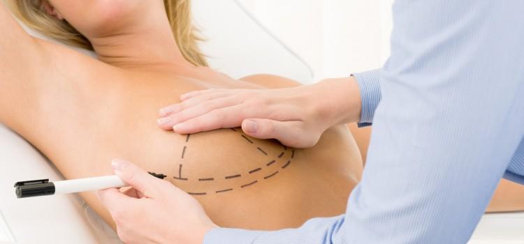Mastoplastica: informazioni utili per l' aumento del seno.