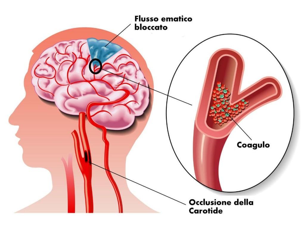 sintomi ictus