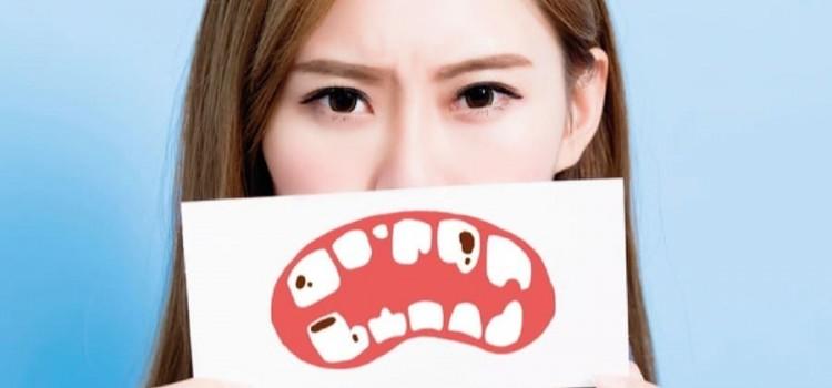 Carie e sintomi di cavità dentali, cause e trattamento.