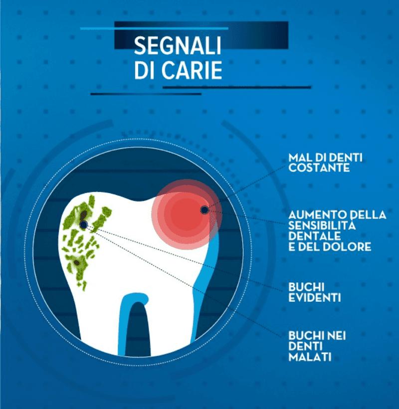 carie-denti-polimed-afragola-napoli